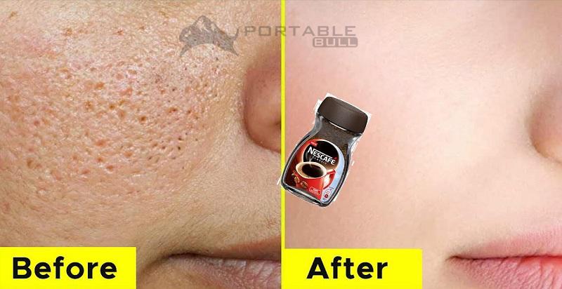 Skin Forever in 3 Days